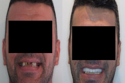 Implant Surgery Results